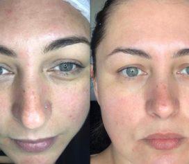 Skincare: Peeling químico